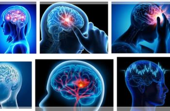 gejala stroke